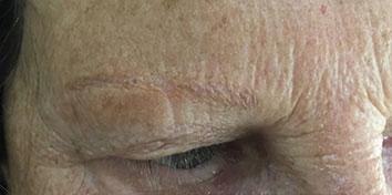 micropigmentacion-antes