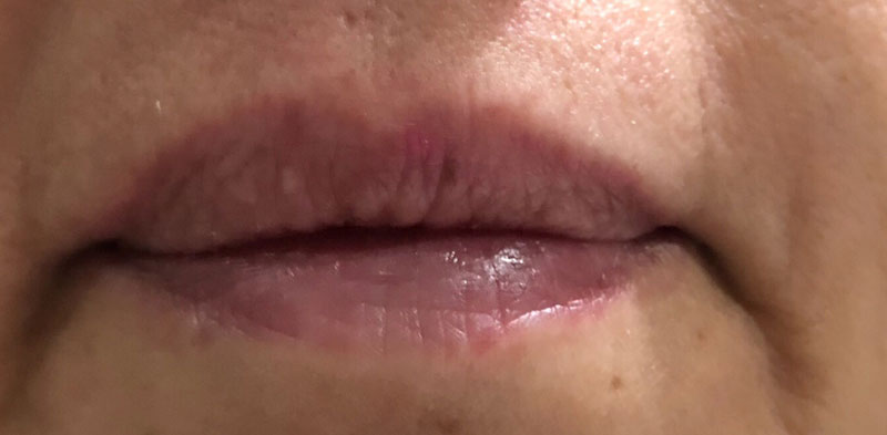 micro-labios-antes