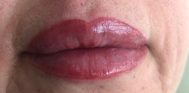 micro-labios-despues