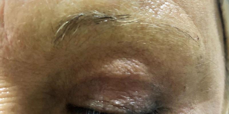 micropigmentacion-cejas-1-antes