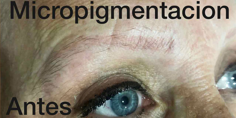 micropigmentacion-cejas-6-antes
